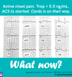 active chest pain trop 5 0 [ 2048 x 2048 Pixel ]