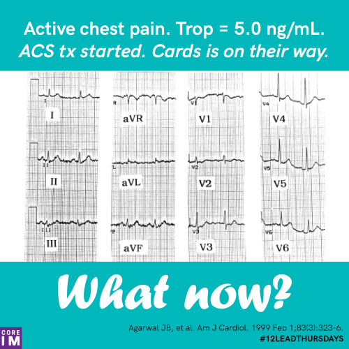 small resolution of active chest pain trop 5 0