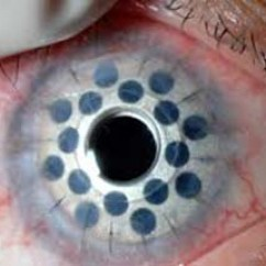 Diagram Of Artificial Eye 1980 Honda Cb750f Wiring Corneal Transplant Foundation