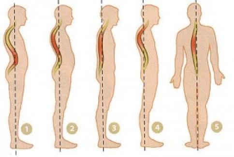 Postura del corpo