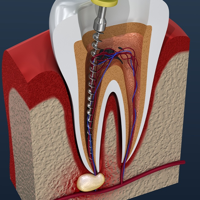 Root Canal Therapy Corpus Christi TX | Toothache ...
