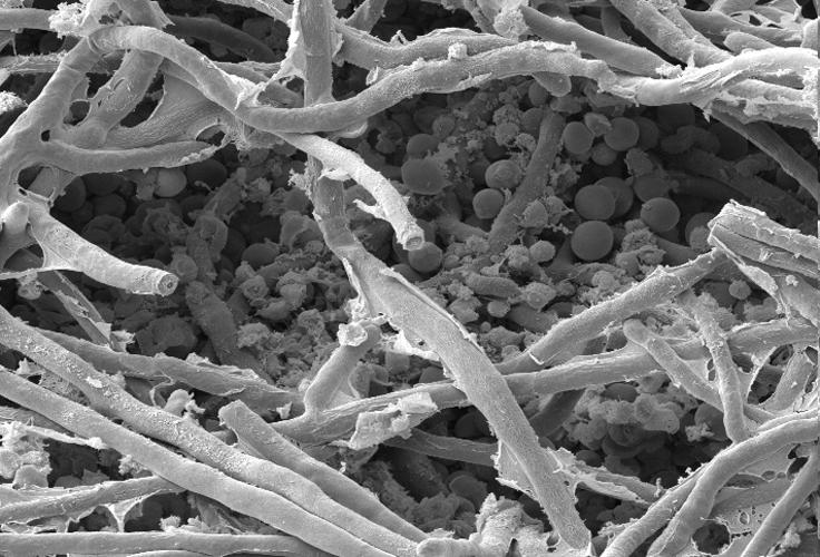 micro-sem-fungus+yeast2