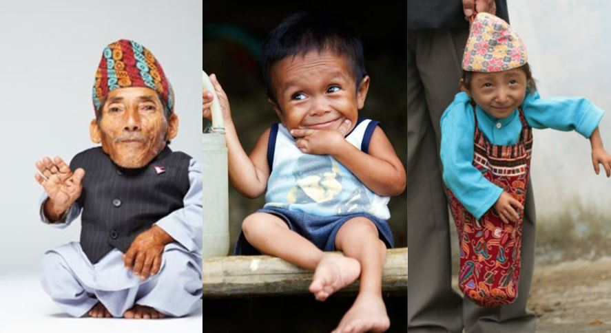 10 Shortest People In The World Ever