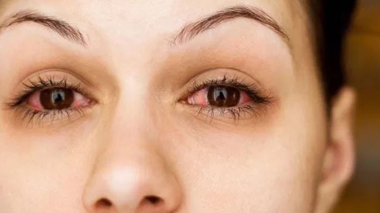 9 Home remedy for conjunctivitis- Apollo eye infection