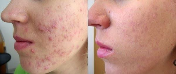 4 remedies to get rid of pimples and acne