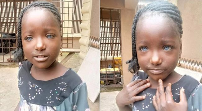 Nigerians to make donations for little girl rejected because of her blue eyes (Video)