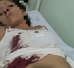 Surubim: sem ter objetos para serem roubados, mulher é esfaqueada por ladrões