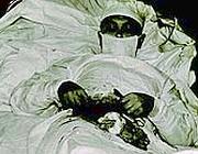 Una delle foto dell'intervento, scattate dagli assistenti «improvvisati» (British Medical Journal)