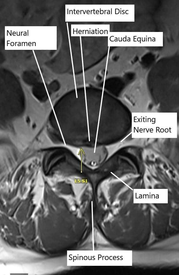 Prolapsed Intervertebral Disk (PIVD) | Complete Orthopedics | Multiple NY Locations