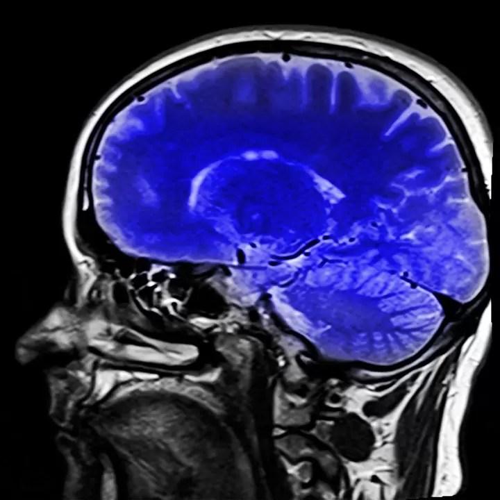 Un'infezione gengivale potrebbe essere il potenziale fattore di rischio del morbo di Alzheimer