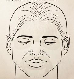botox procedure [ 1200 x 1604 Pixel ]