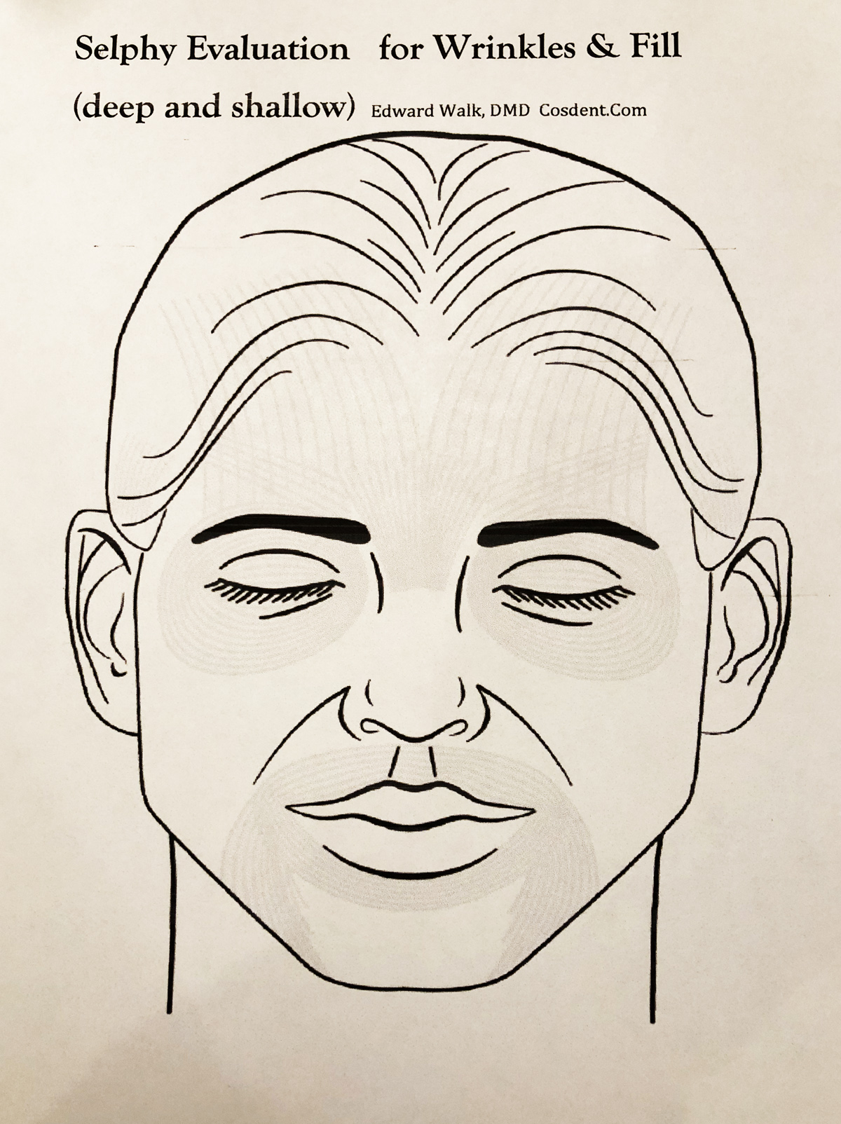 hight resolution of botox procedure