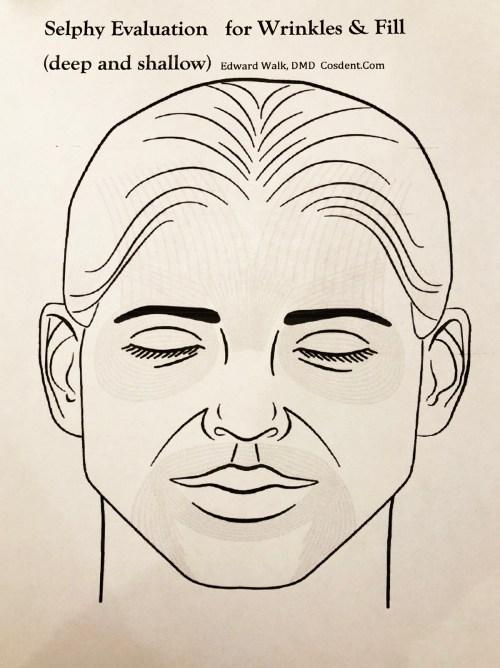 small resolution of botox procedure