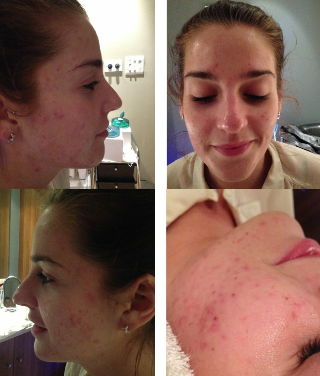 stephanie before pictures in acne treatment
