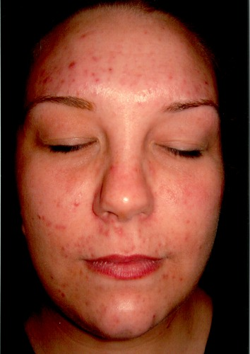 Adult Acne and IBS - Transformation Tuesday - CosmedixUK