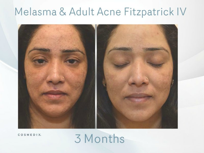 Melasma – Transformation Tuesday