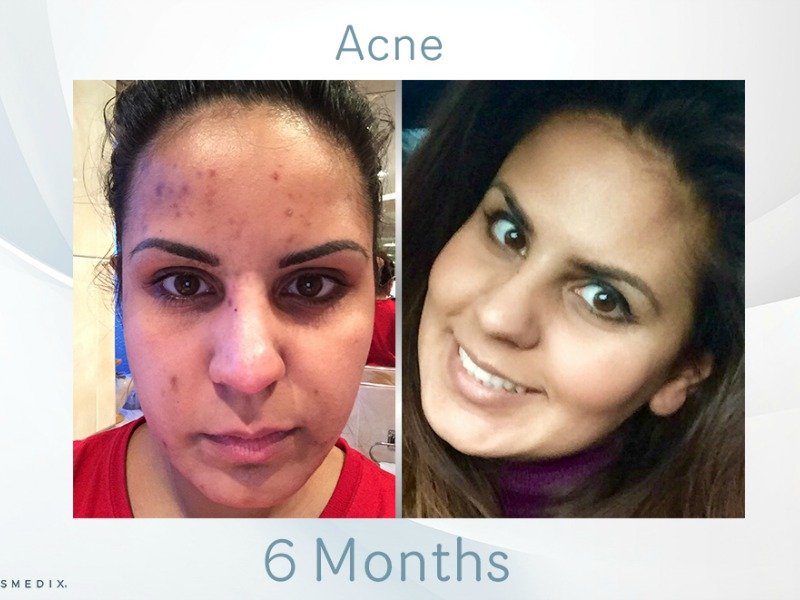 Transformation Tuesday – Adult Acne & Scarring