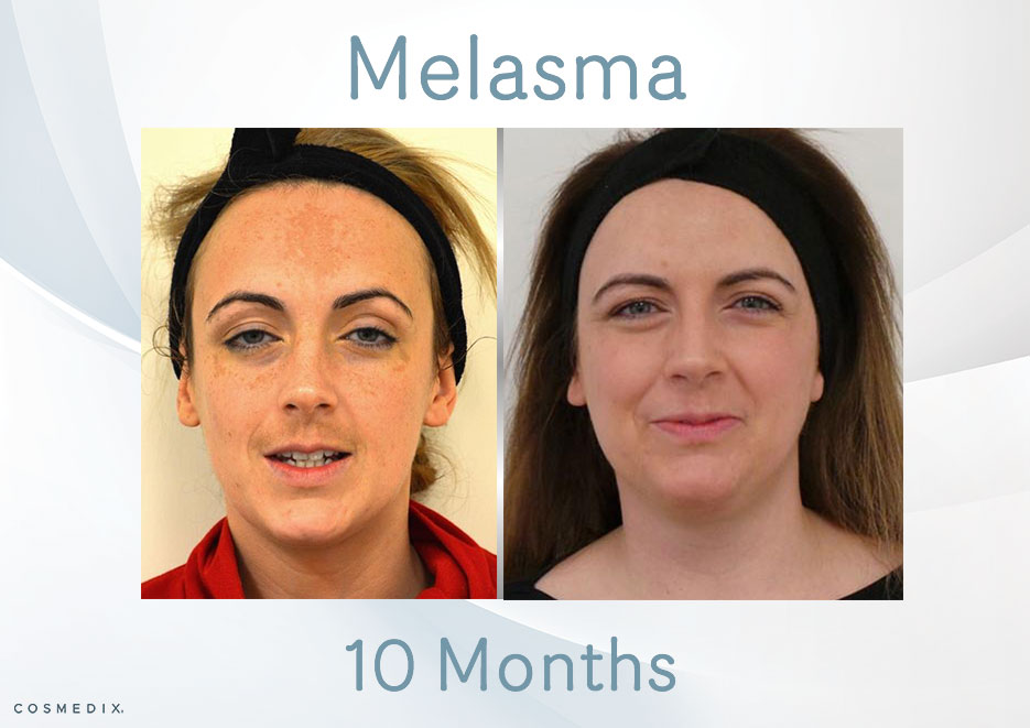 Transformation Tuesday – Treat Melasma with Cosmedix