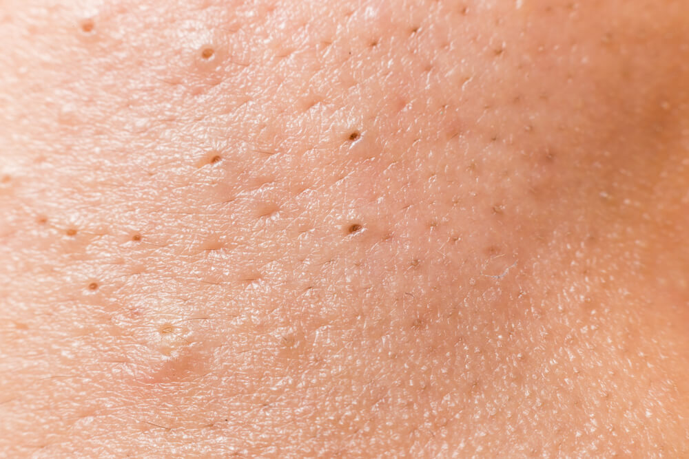 Understanding and Treating Enlarged Pores
