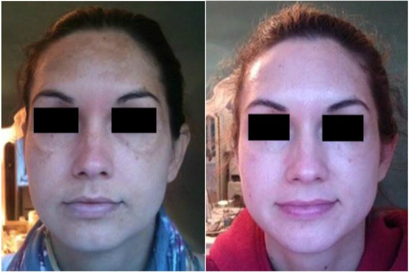 CosMedix Timeless Peel - Treatment Spotlight - CosmedixUK