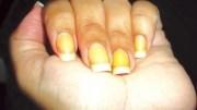 exemplo de descoloração ou unhas amarelas após retirar o esmalte