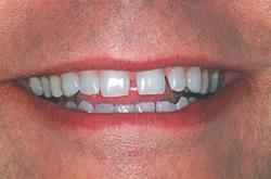 General Spacing Between Teeth