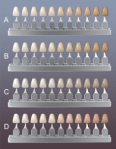 Dental color chart also precise matching rockefeller cosmetic dentistry rh cosmeticdentistsnewyorkcity