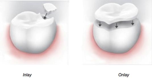 Dental Onlays  Inlays NYC Manhattan  Rockefeller Cosmetic Dentistry