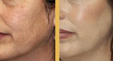 Azelaic Acid Before and After Archives - Cosmetics and you ...