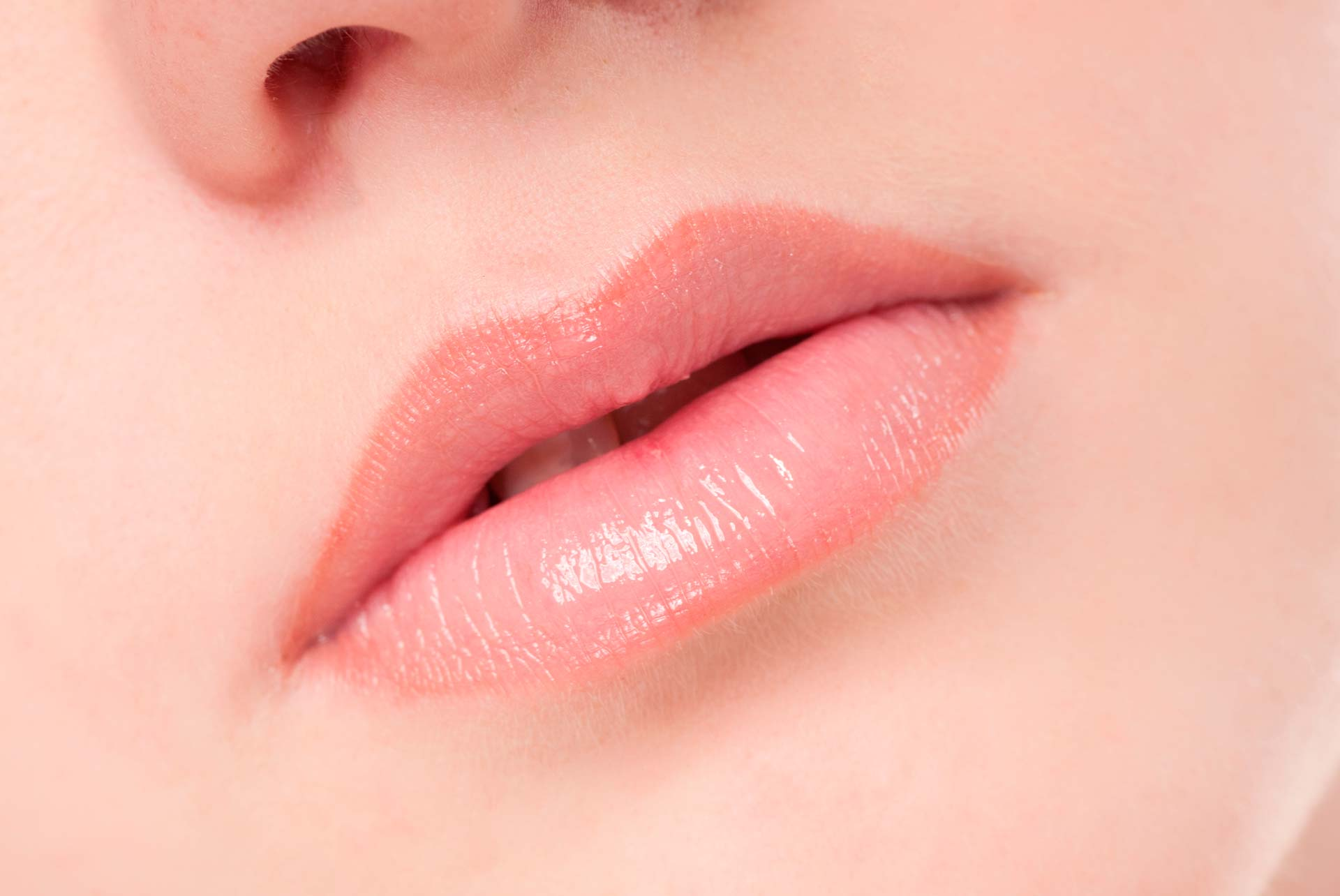 What can be done about lip wrinkles | The Cosmetic Skin Clinic