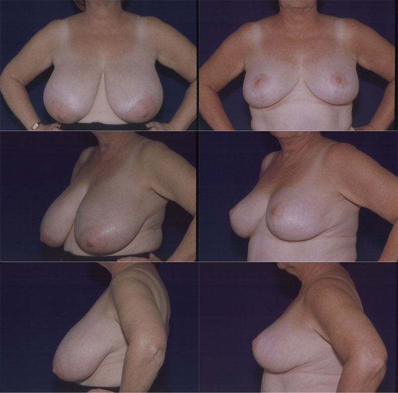 Breast Reduction Before After Pictures  Dr Ronald Schuster