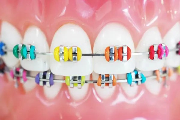 Clear Tray Orthodontics: An alternative to metal braces