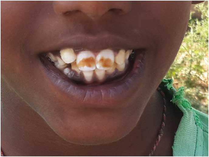 fluorosis-teeth