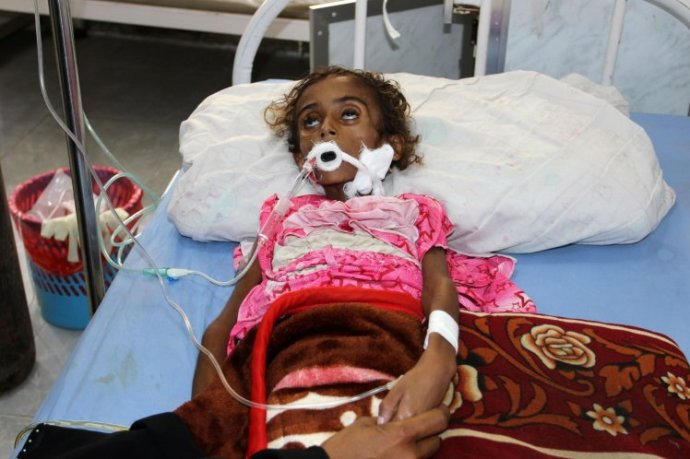 (FILES) This file photo taken on May 02, 2017 shows a malnourished Yemeni child receiving treatment at a hospital in the Yemeni port city of Hodeidah.  / AFP PHOTO / STRSTR/AFP/Getty Images