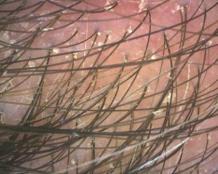 dandruff and redness on scalp