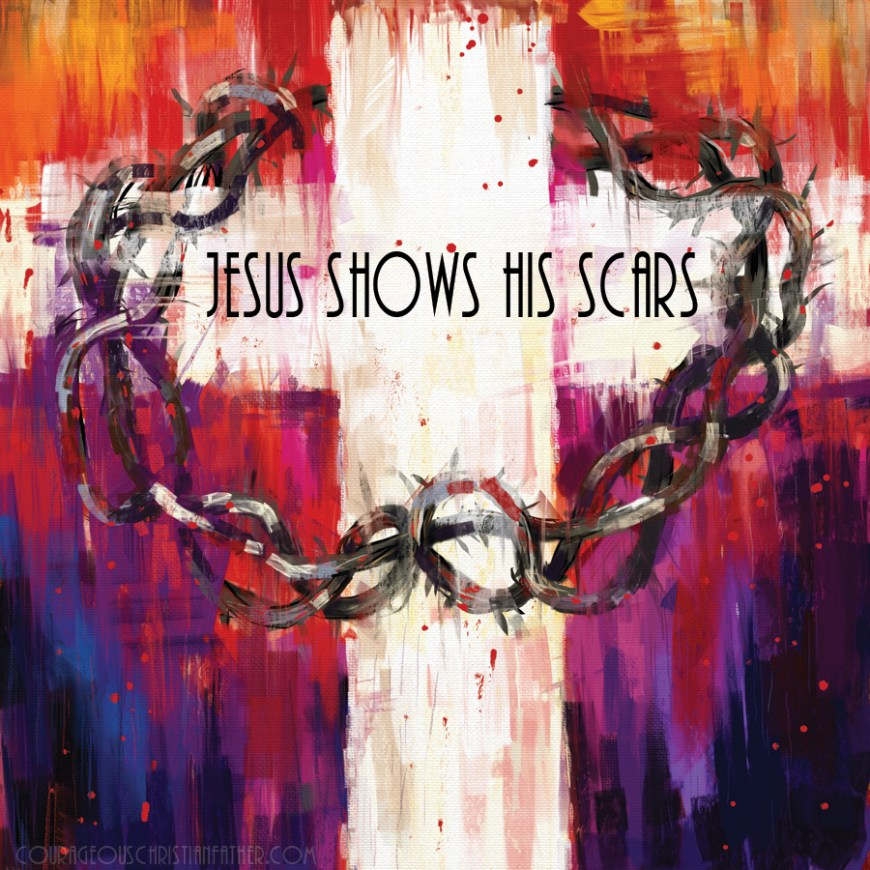 Jesus Shows His Scars - Jesus shows His Scars, wounds to His disciples to show them He was who He says He is. Those scars are also a reminder of His payment for us. What He did for us on the Cross! #Scars