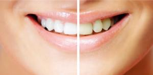 courtenay dental health implant centre teeth whitening
