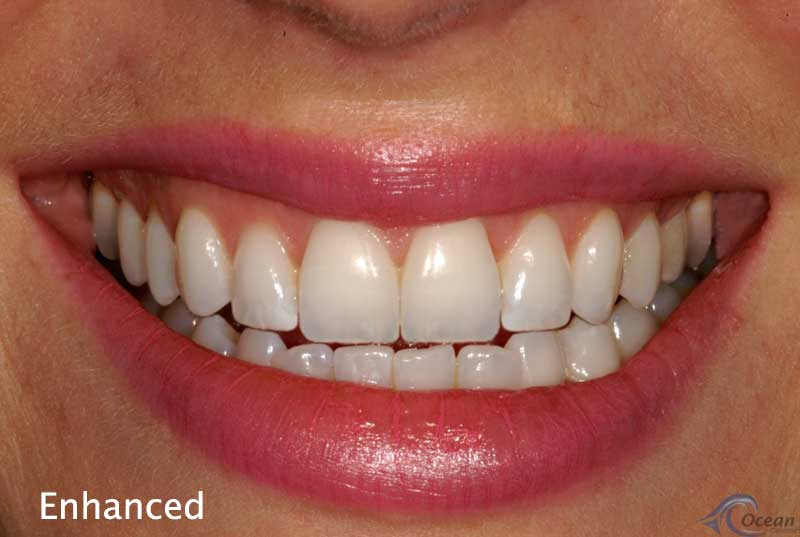 teeth courtenay dental health courtenay