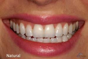 courtenay dental health courtenay teeths