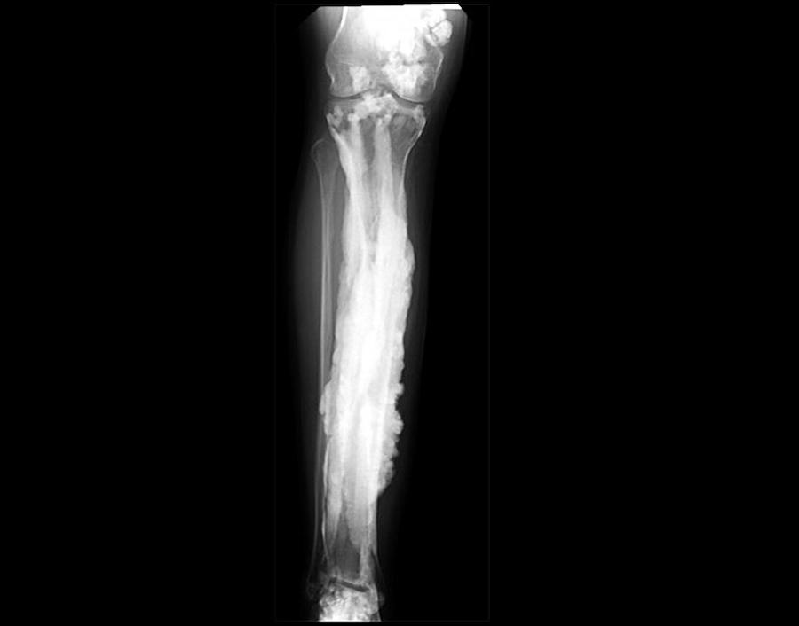 Mutated Genes Linked to 'Dripping Candle Wax' Bone Disease