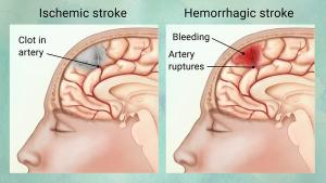 Ischemic vs hemorrhagic stroke