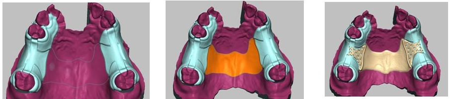 HP用3Dエステプレゼン画像4