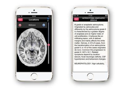 Irad Brain MRI