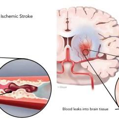 stroke brain diagram [ 1350 x 667 Pixel ]