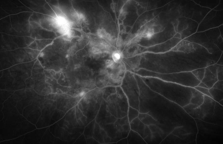 Aspect en angiographie à la fluorescéine d'une rétinopathie diabétique