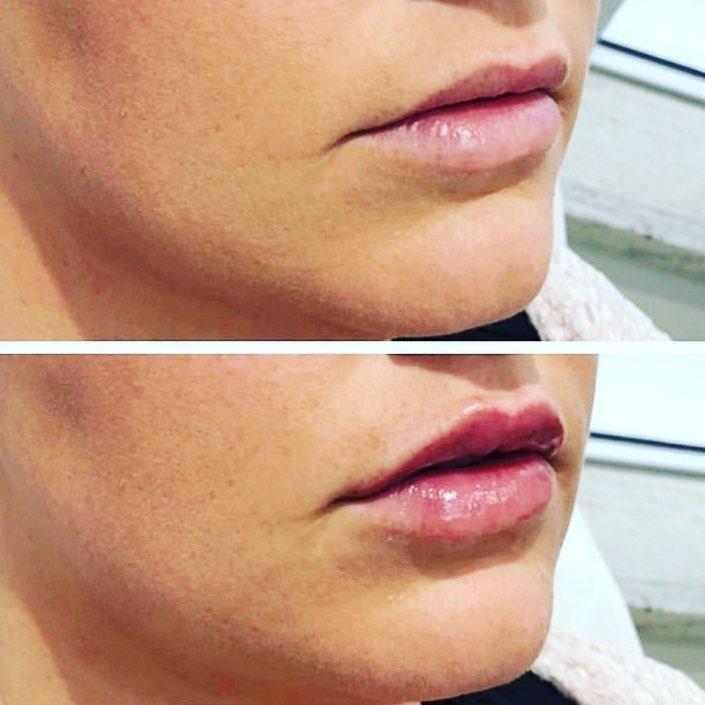 filler labbra torino 10