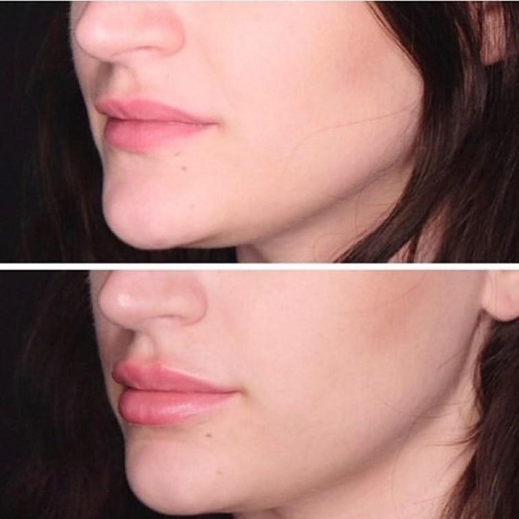 filler labbra torino 12