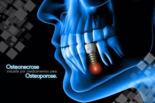 Necrose no maxilar associada ao uso de medicamentos contra osteoporose