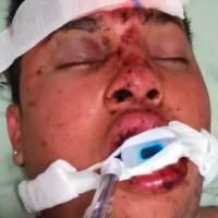 Se busca a los familiares del paciente Ubaldo González; está en el Hospital General de Pachuca