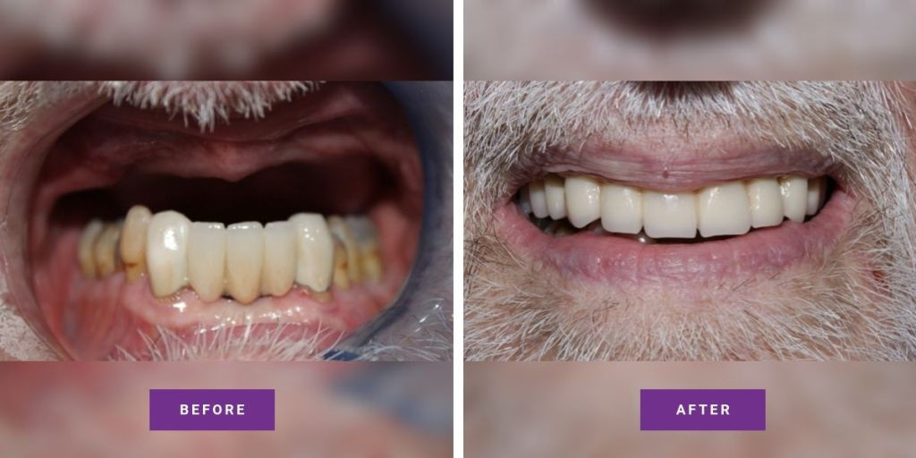 Dental Implabts Before and After Crofton Dental 1 1
